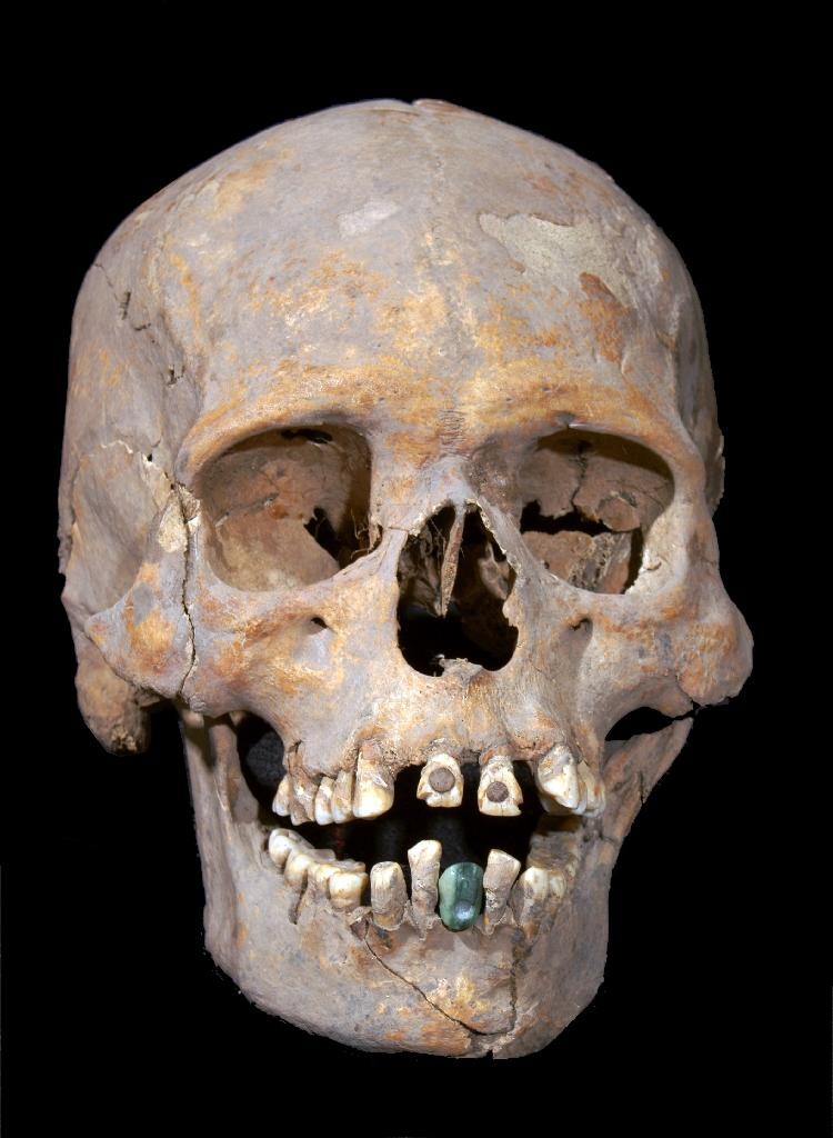 The 1,600-year-old skeleton of an upper-class woman found near Mexico's ancient Teotihuacan wore a prosthetic lower tooth made of a green stone known as serpentine (AFP Photo/HO)