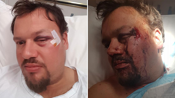 Man's plea for help after horrific beating while fishing in early hours