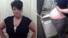This woman suffered from a three-year long 'pregnancy'