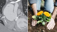 Gardener's bizarre death after handling soil