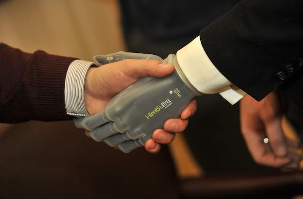 Touch Bionics' latest 'i-limb' offers a powered rotating thumb, smartphone controls