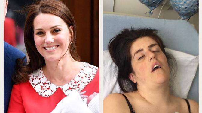 Kate Middleton VS la réalité