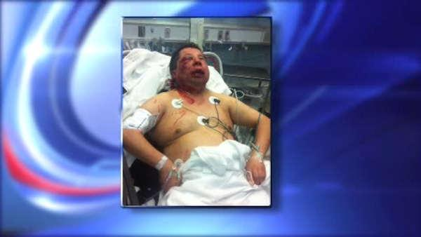 Man severely beaten by 12-year-old boy