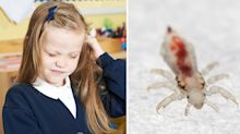 Nits: Parents warned of 'super lice' risk as children return to school