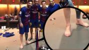 Messi tem seis dedos no pé direito?