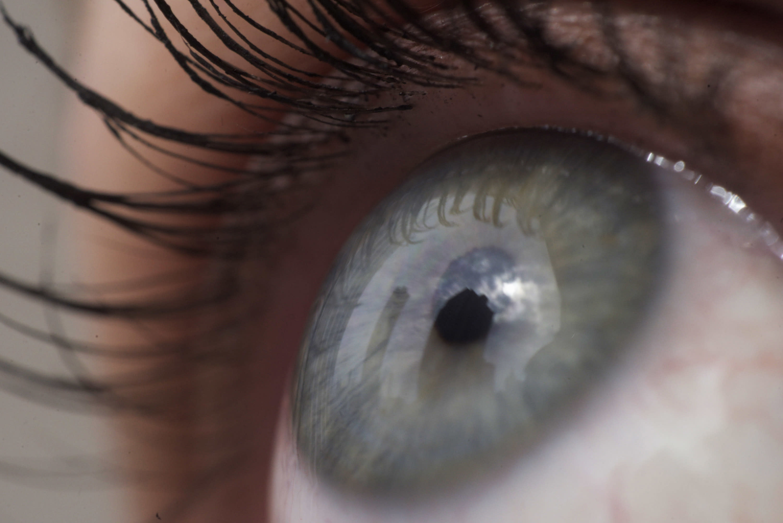 Gene Editing Blindness