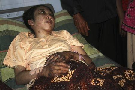 Indonesian domestic helper Erwiana Sulistyaningsih lies in a bed whilst being treated at a hospital in Sragen, Indonesia's Central Java province January 17, 2014. REUTERS/Stringer