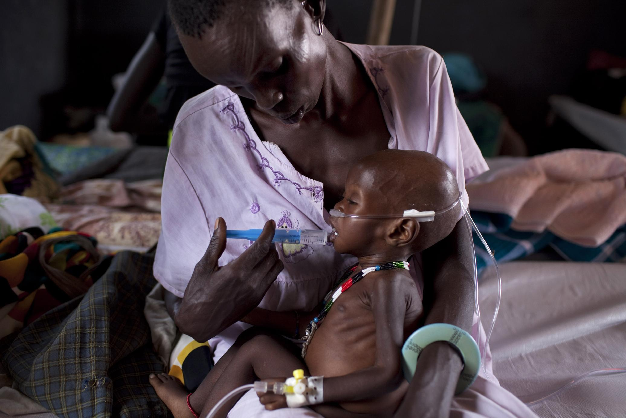 A severely malnourished child receives treatment at a medical camp run by international aid group Medecins sans Frontieres, on March 3, 2014 in Minkamman, South Sudan (AFP Photo/Jm Lopez)
