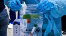 Laboratorio de EEUU presenta un test de 5 minutos para la covid-19
