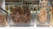 El insólito museo londinense que sorprende a los más morbosos