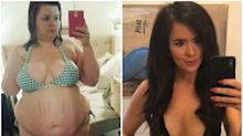 Woman shows off 175 lb weight loss: 'I never thought I would wear lingerie again'
