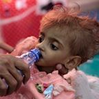 UN warns Yemen could see 'worst famine in a century' in coming months