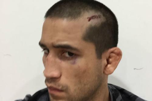 Soto exibe corte seco em sua cabeça após a luta - Reprodução/Facebook