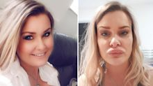 Woman left with 'dodgy lip fillers' appearance after severe allergic reaction
