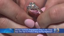 Woman accidentally swallows engagement ring while sleeping