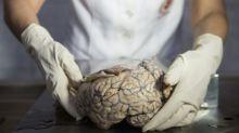 Cientistas tentam explicar como - e porque - cérebro humano cresceu tanto