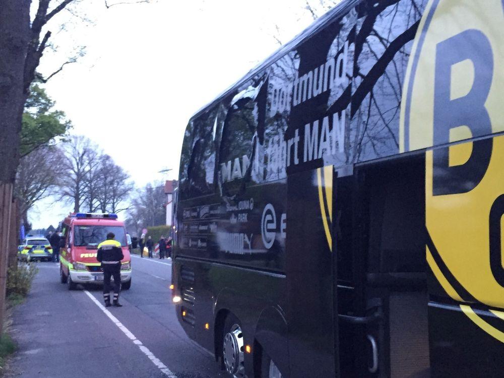 Explosions à Dortmund: les précédents dans le monde du foot