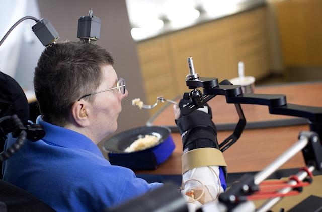 Paralyzed man first to move his arm by thinking about it