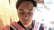 Li Chen sustains minor injury filming variety show