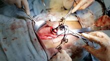 Set of keys, knife and necklace among 80 objects removed from Indian man's stomach by surgeons