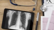 Novel Model to Predict Lung Cancer Survival Developed