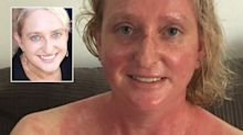 Meet the woman who breaks out in a rash simply walking into a supermarket