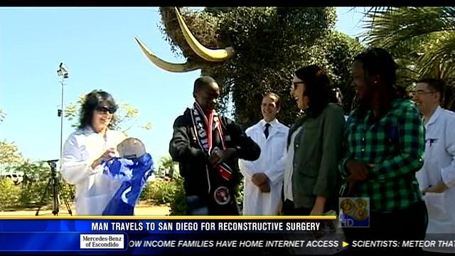 Zimbabwe man travels to San Diego for reconstructive surgery