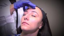 Experts Warn of Risks of Some at-Home Chemical Peels