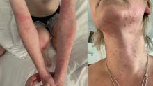 Urticaria por oruga procesionaria: claves para identificar reacciones alérgicas y qué hacer