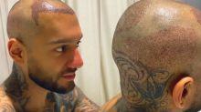 """Lucas Lucco faz transplante capilar para desacelerar calvície: """"Me deixava chateado"""""""
