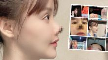 Actress' nose 'dies' after 'nightmare' plastic surgery