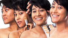How 'camouflage makeup' can help overcome skin imperfections