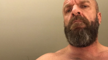 Why surgery for a pectoral tear? WWE fighter Triple H is recovering after chest injury.