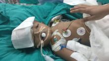 India boy separated from conjoined twin dies after three years