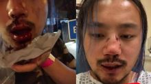 Man who bravely defended his gay friend beaten by thugs in hate crime just hours after Pride Month