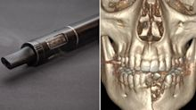 Teen has jaw shattered and loses teeth after vape pen explodes in his mouth