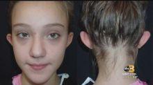 Victime de moqueries, elle se fait opérer de ses « oreilles d'elfe » à 11 ans