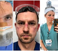Health care workers show faces bruised by protective gear