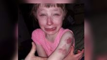 Mom speaks out after 10-year-old with special needs violently bitten on school bus