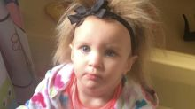 Meet the little girl whose rare genetic condition leaves her with permanent bedhead