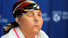 Woman is first in U.S. to get second face transplant