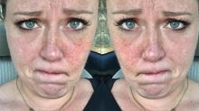 Woman Learning to Love Her Freckles Uses Body-Positive Approach