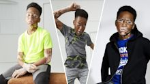Primark praised for featuring teen with vitiligo in new campaign