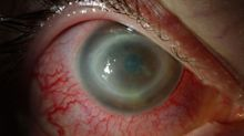 Blindness-causing eye infection sparks contact lens warning