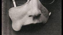 La Primera Guerra Mundial marcó el inicio de la cirugía reconstructiva