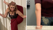 'Clumsy' mum who constantly dislocates joints gets diagnosis