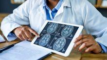 Neue Studie: Auch über 60-Jährige haben nach einer AstraZeneca-Impfung erhöhtes Risiko einer Hirnvenenthrombose