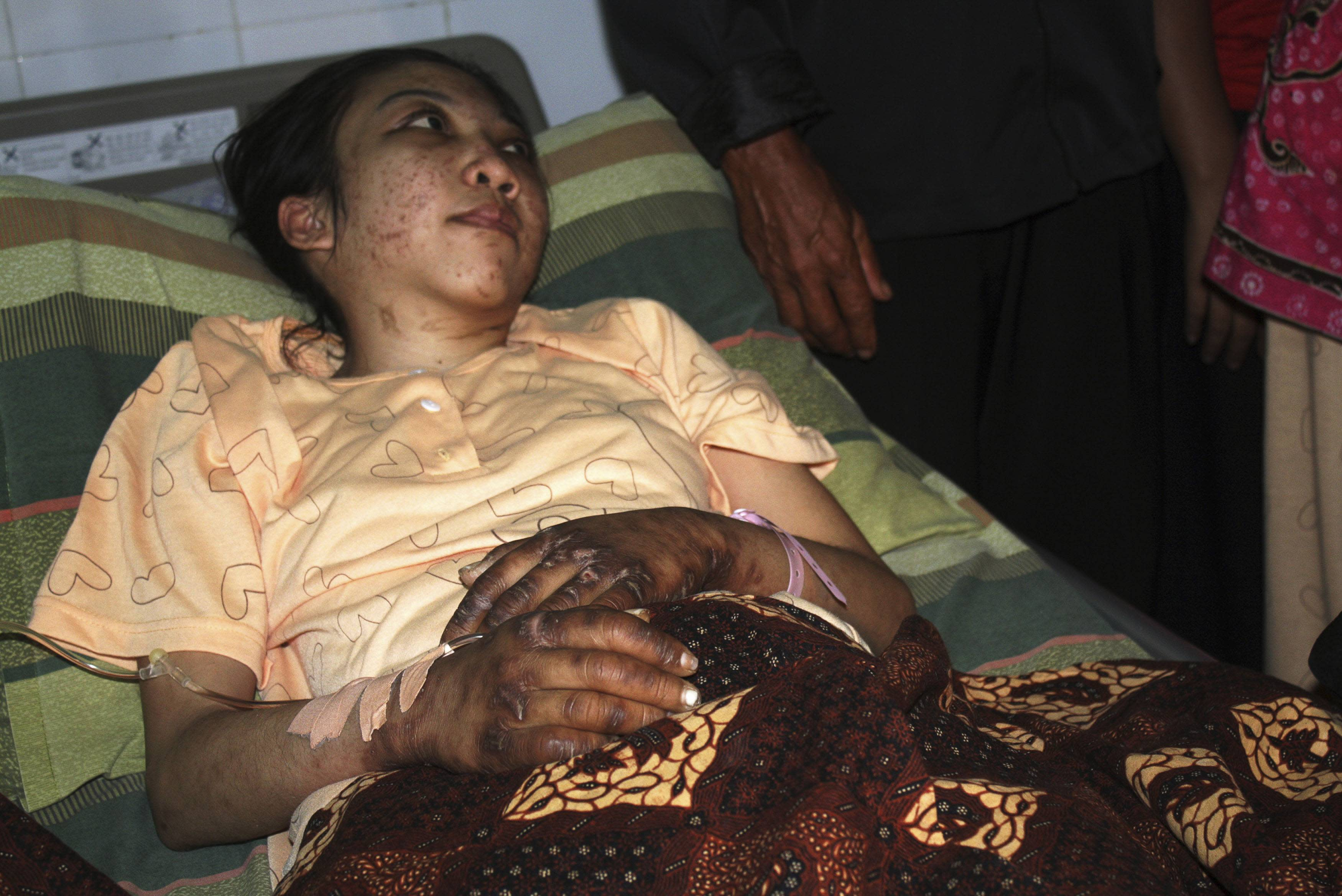 Indonesian domestic helper Erwiana Sulistyaningsih lies in a bed whilst being treated at a hospital in Sragen, Indonesia's Central Java province January 17, 2014. Thousands of people rallied in Hong Kong on Sunday to demand justice for Erwiana, who was badly beaten by her employer in a case that has sparked widespread outrage and a police investigation into accusations of torture. Erwiana had suffered extensive injuries but her condition was stabilising, a hospital spokesman said. Picture taken January 17, 2014. REUTERS/Stringer (INDONESIA - Tags: HEALTH)