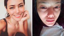 Jovem perde todos os cílios após procedimento de beleza malsucedido