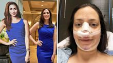 Mum of three spends £19,000 on surgery to look like Meghan Markle